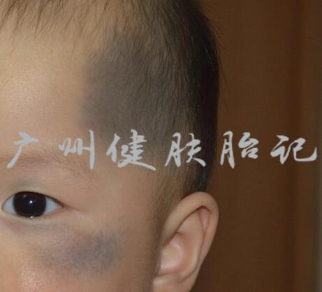 广州哪里治疗宝宝青胎记好