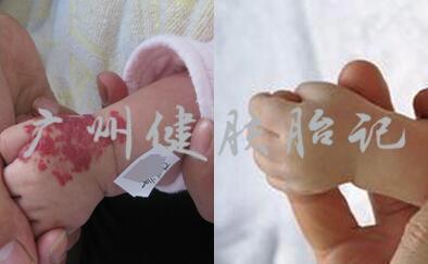 如何判断宝宝胎记需不需要治疗